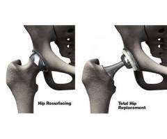 Best Hip Replacement in India