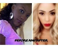 No1 Skin Lightening Pills Creams in Uganda kampala