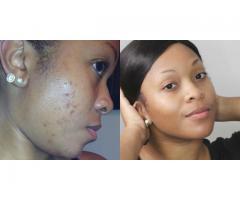Skin Glowing & Anti Aging Oil +256786854612