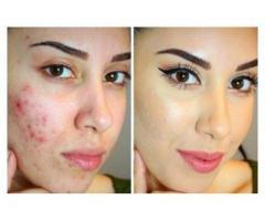 Best Skin  dark spot lightening cream +27787700984